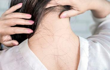 Por que as mulheres estão perdendo cada vez mais cabelo?