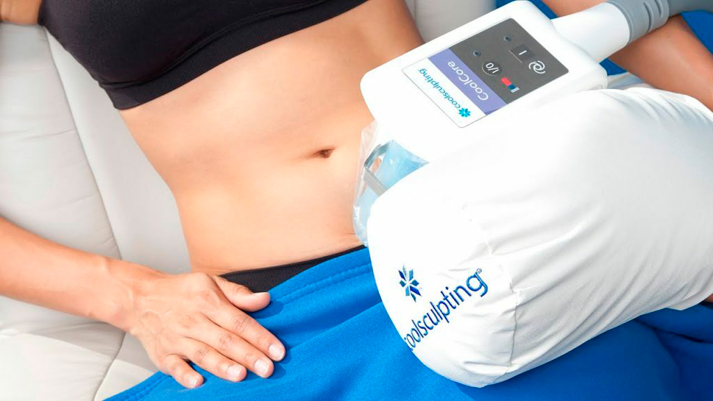 Read more about the article Coolsculpting