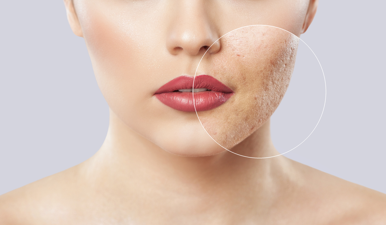 Read more about the article Skin Gold Therapy