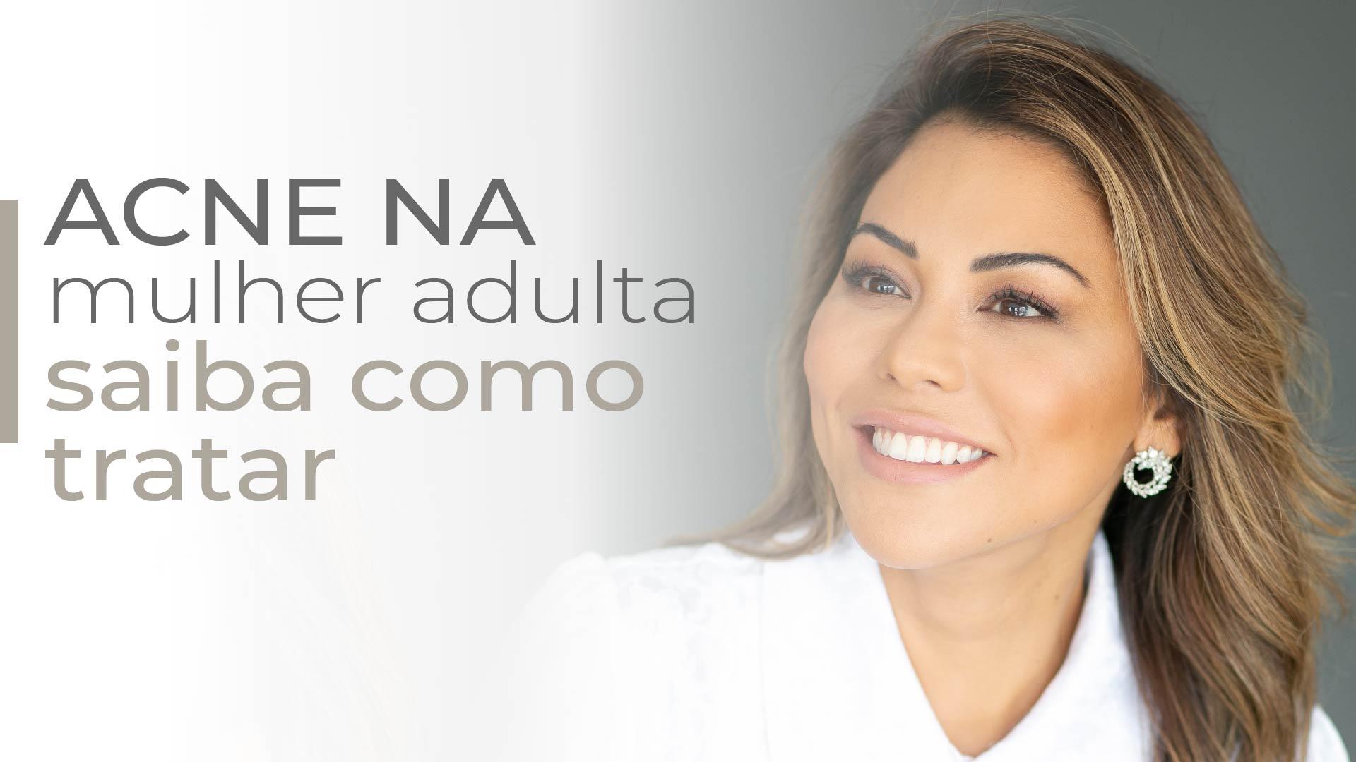 Read more about the article Acne da mulher adulta: como tratar?