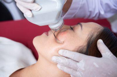 Laser face treatment
